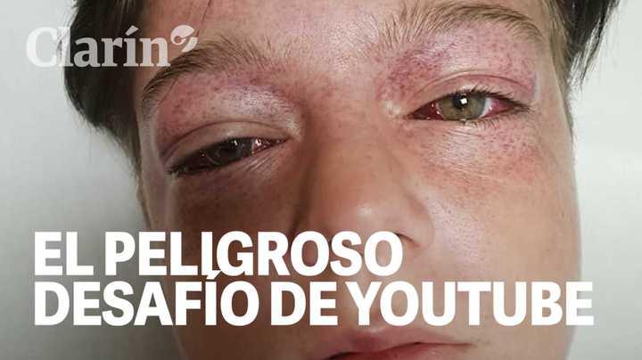 Cómo es el peligroso desafío de YouTube por el que casi murió un chico de 11 años
