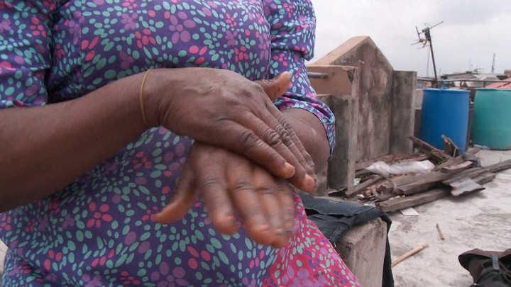 Blanquearse la piel: una moda con riesgos que crece en África