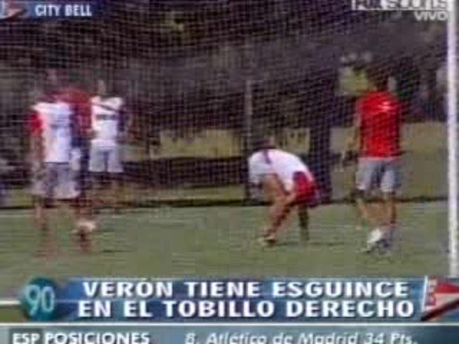 Verón sufrió un esguince de tobillo derecho.